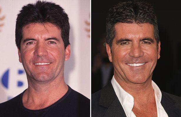 celebrity example of dental veneers simon