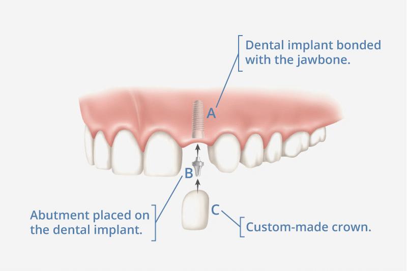 ilustración del implante dental