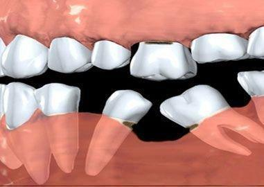 example of what happens when a tooth is missing longterm