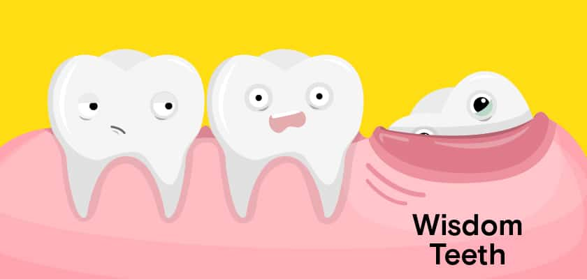 wisdom teeth pain illustration