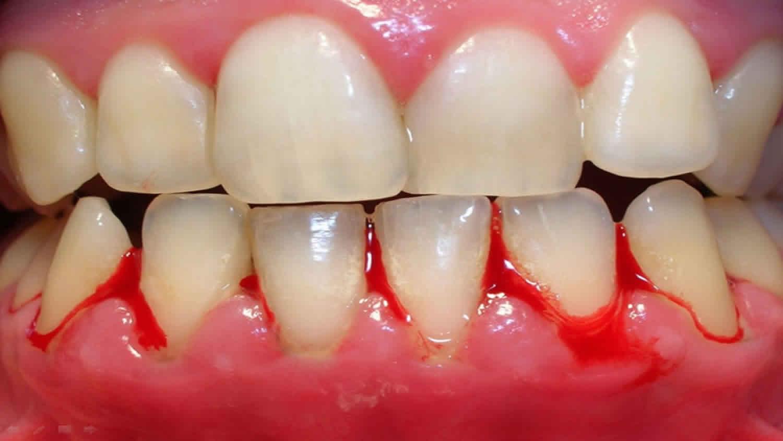 bleeding gums from dental plaque
