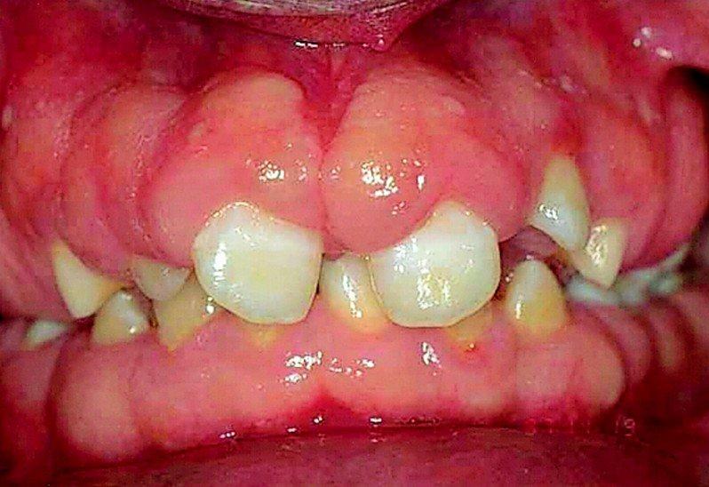 gingival-hyperplasia from medications like phenytoin
