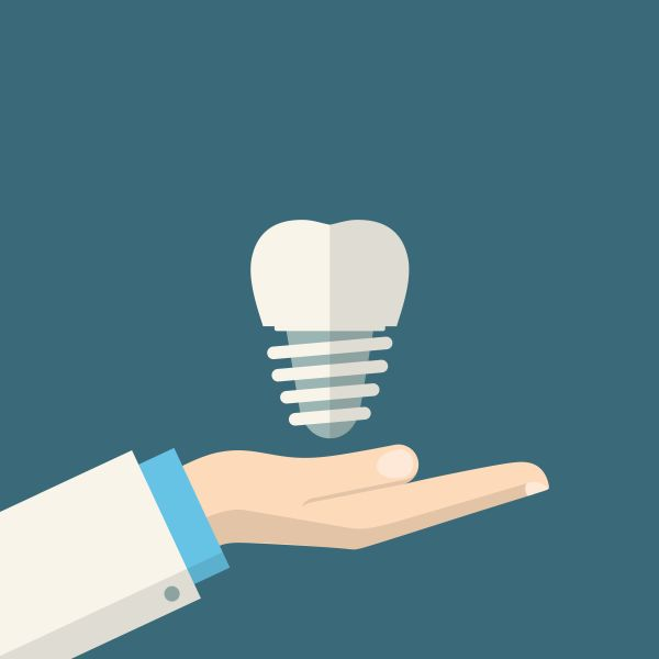 setting expectations and avoiding complications to dental implants image