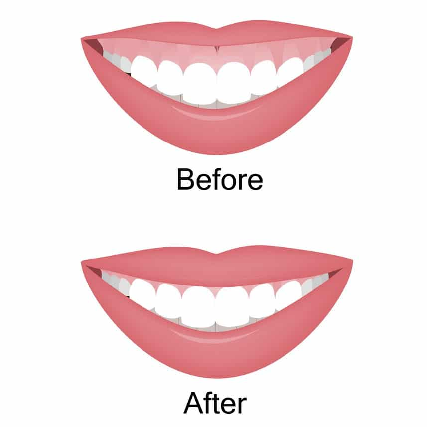 what is a gummy smile ultimate guide featured image