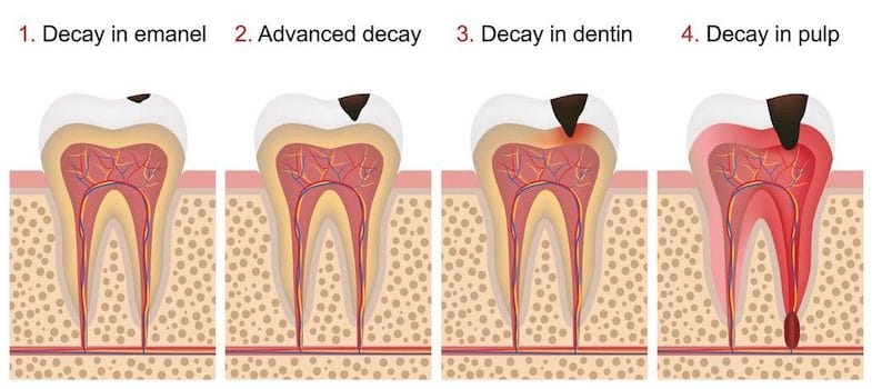 toothache caused by dental decay illustration of stages