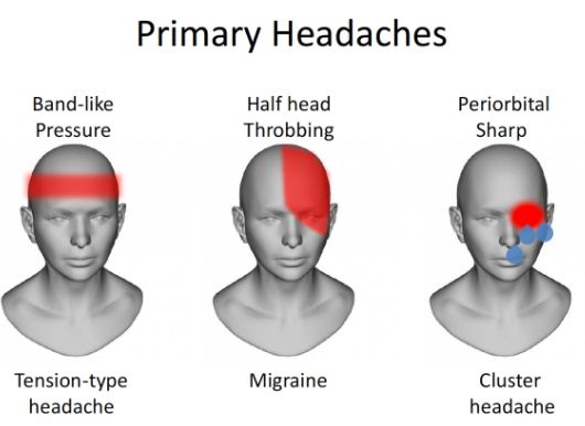 types of headaches illustration boston tmj specialist