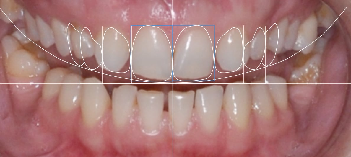are veneers worth it, the digital mockup
