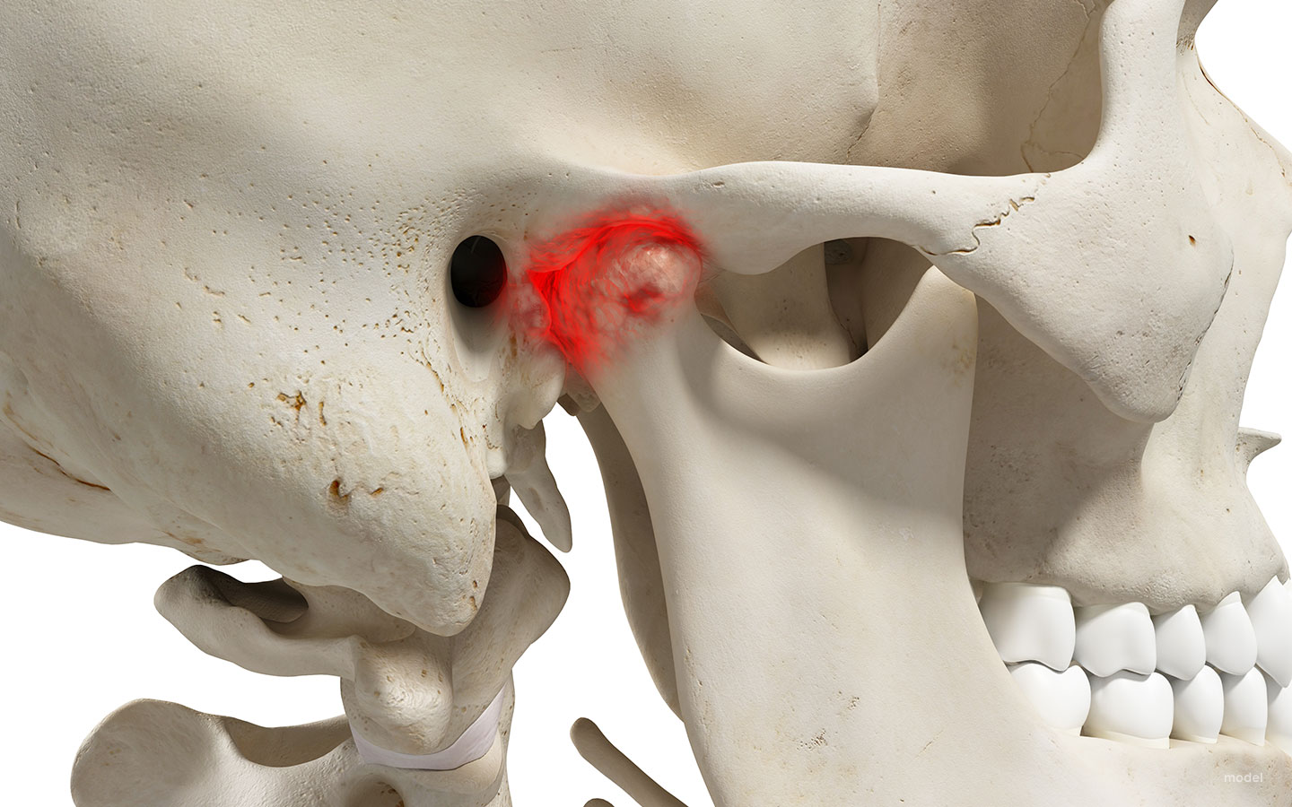 tmj surgery featured image