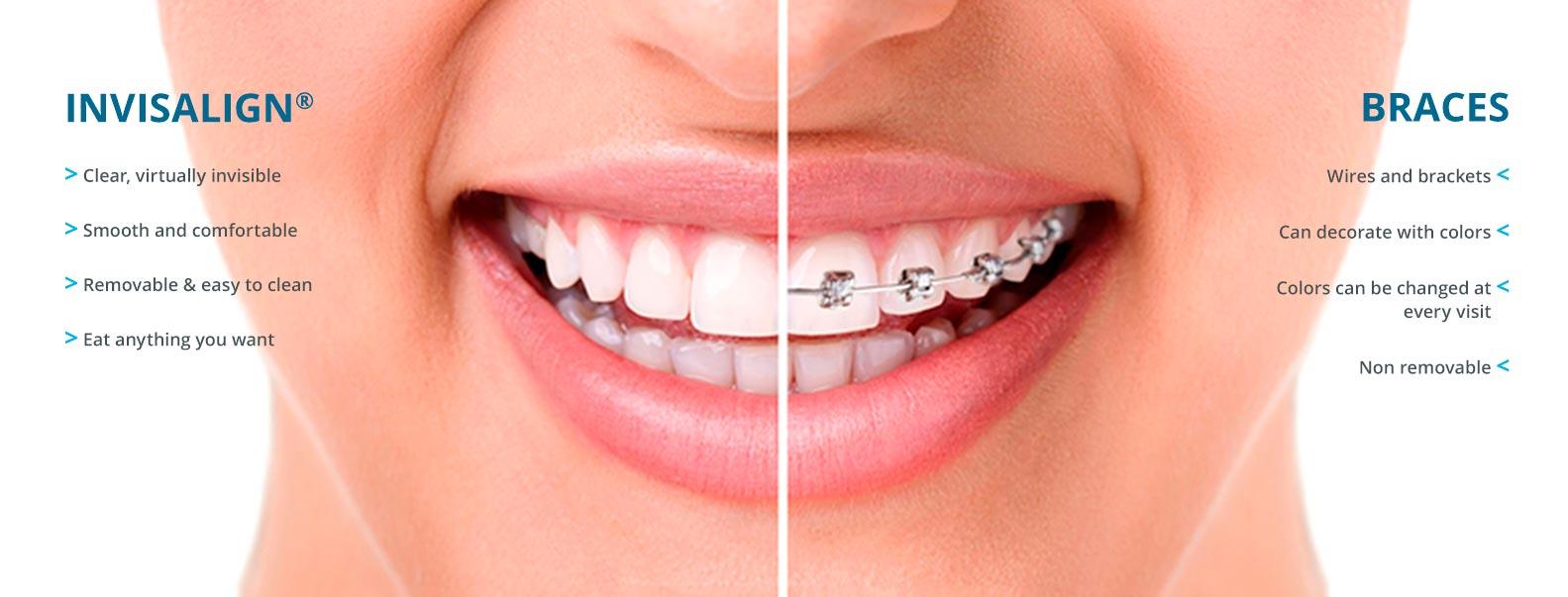 invisalign vs aparat ortodontyczny do korekty nadgryzu