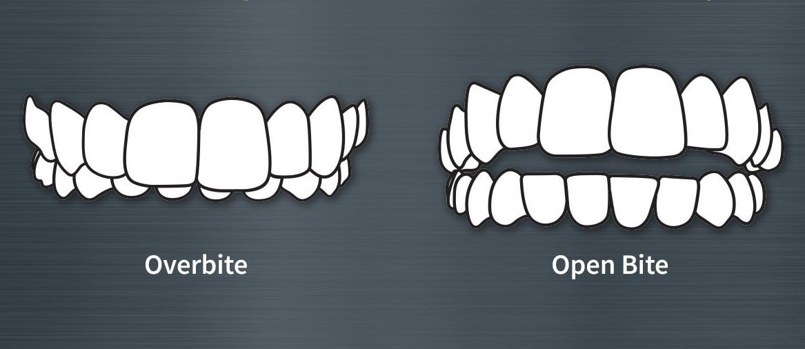 overbite featured image