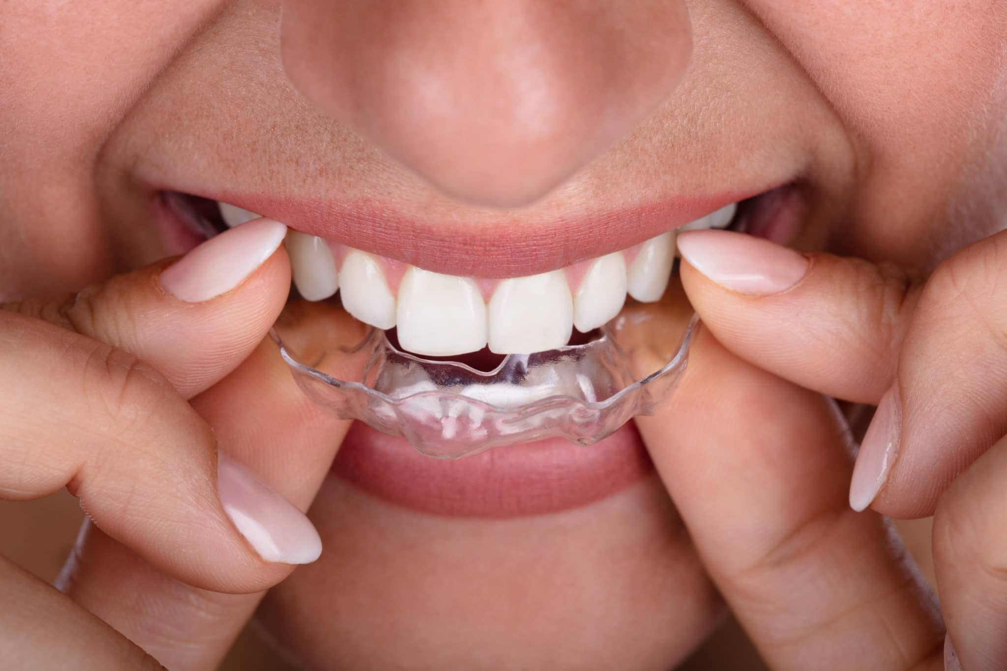 veneers can straighten teeth without braces