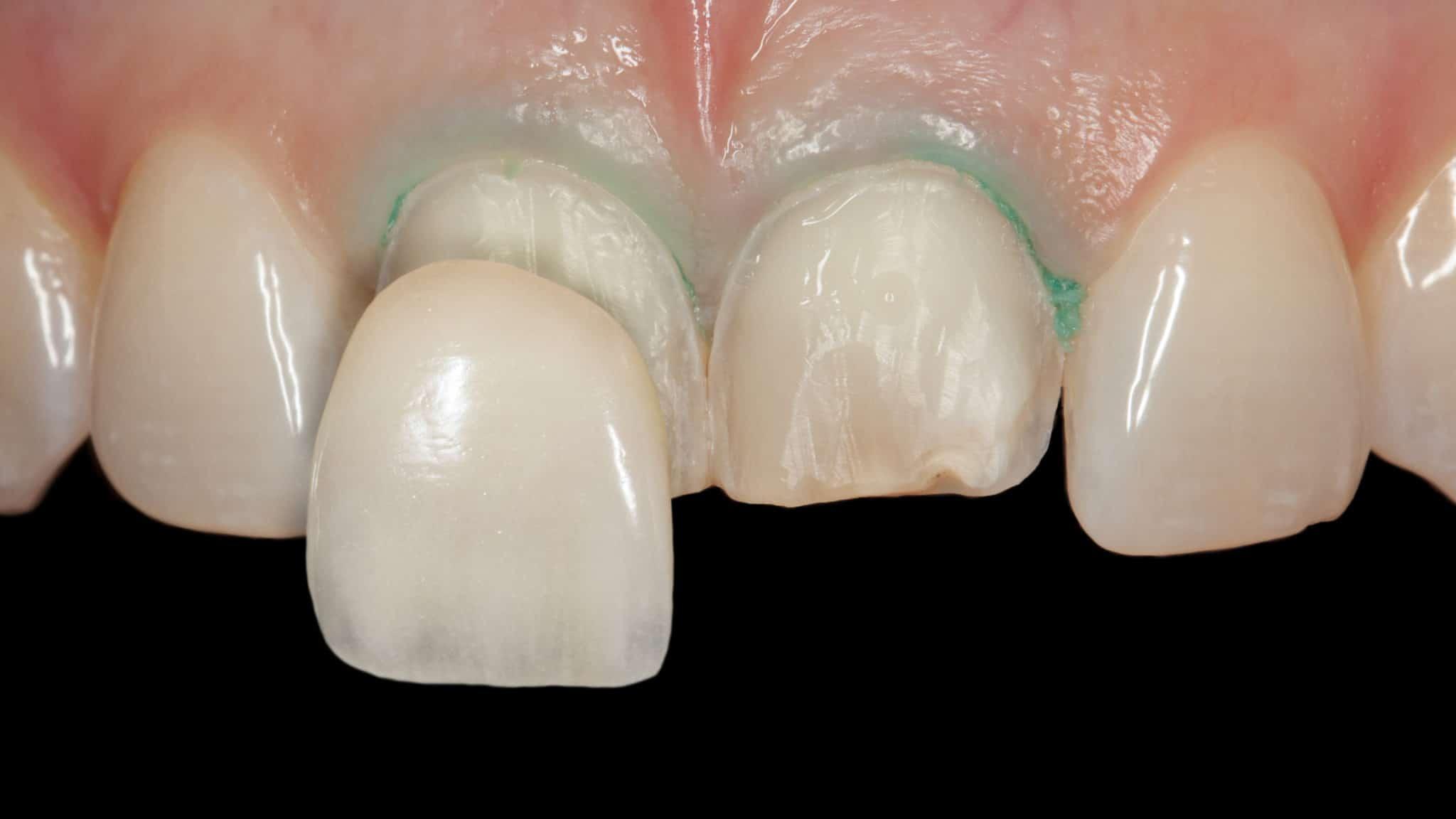 veneers can straighten teeth and also help improve tmj disorder