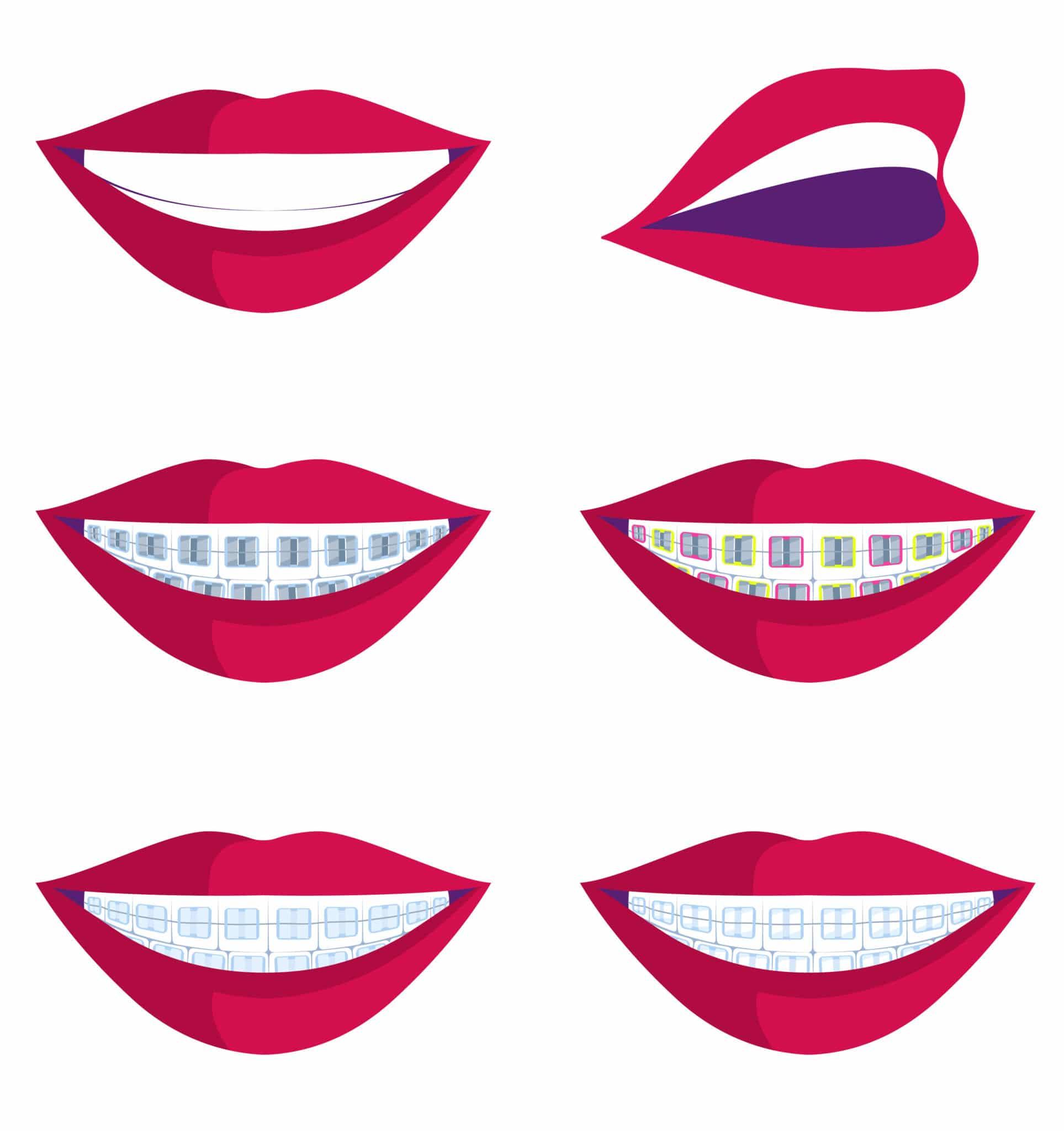 types d'appareils dentaires et comment redresser les dents illustration featured image