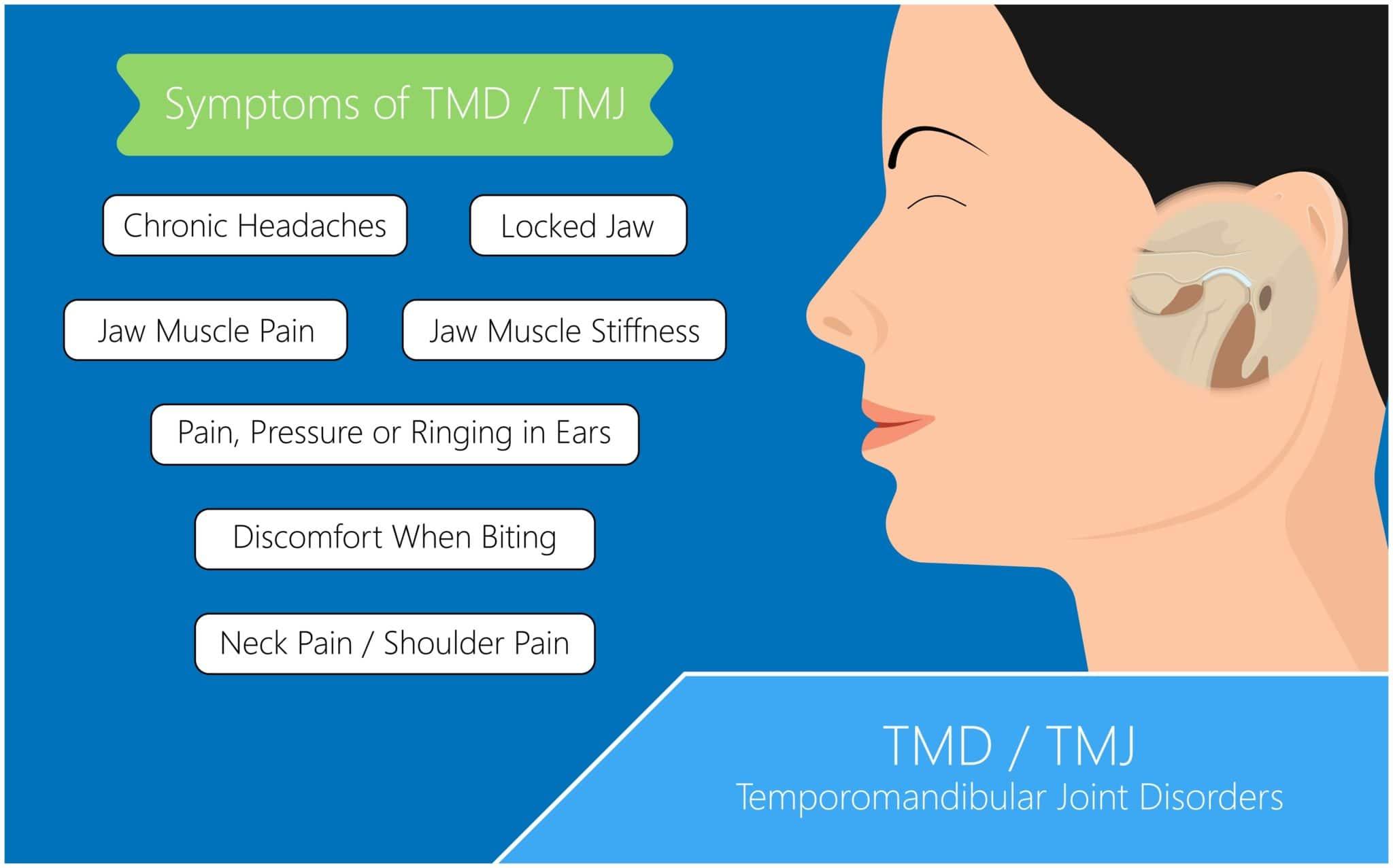 Symptoms of TMJ Disorder infographic temporomandibular joint